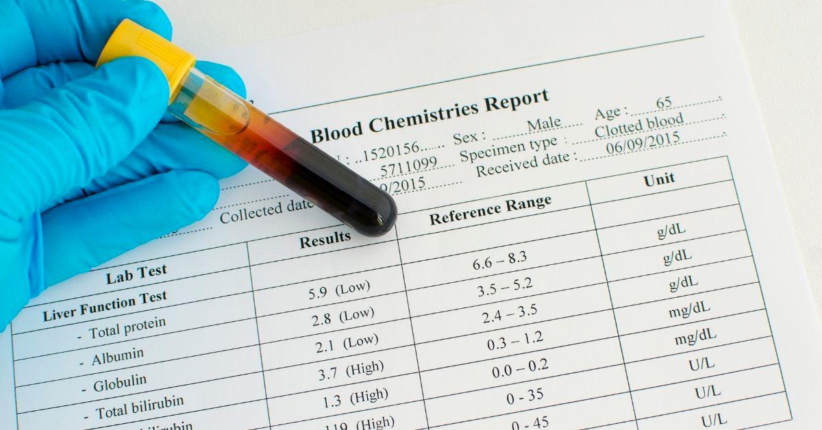Analisi del sangue Bilirubina alta